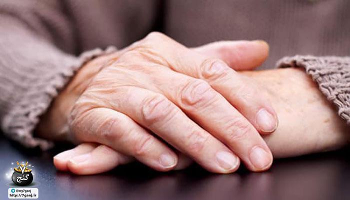 روش های خانگی برای درمان چین و چروک دست