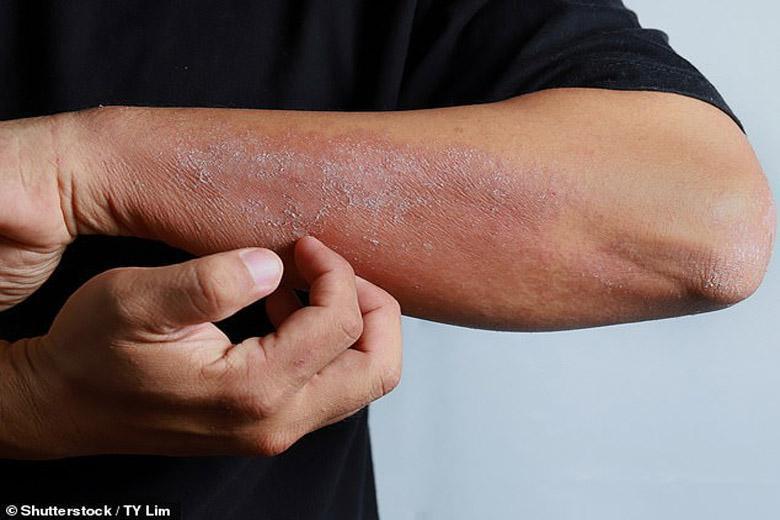 علامت جدید ویروس کرونا؛ خارش پوست